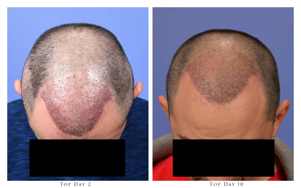 Top View - 2 and 10 Days After Procedure